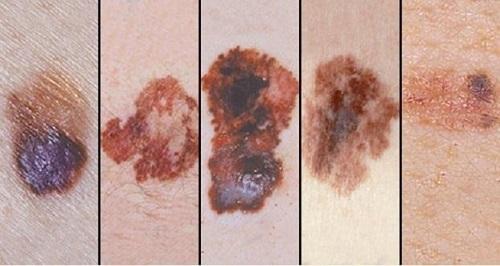 Tác hại của tia UV gây Ung thư da tế bào ác tính